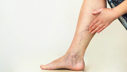 What To Look For In A Sydney Spider Vein Clinic