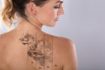 How Tattoos Can Be Removed Safely By The Experts?