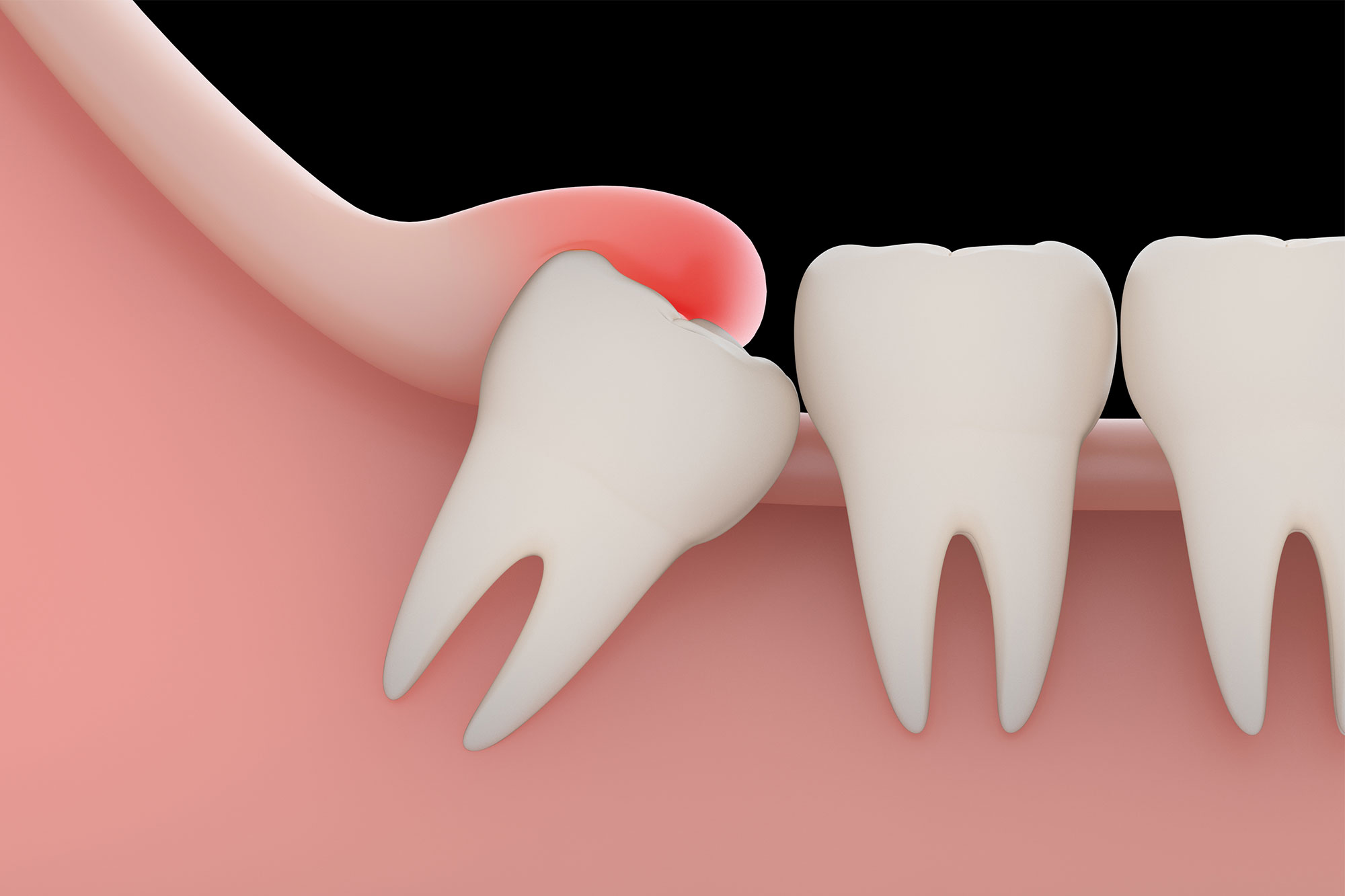 Wisdom Teeth: How To Know If Something Isn't right