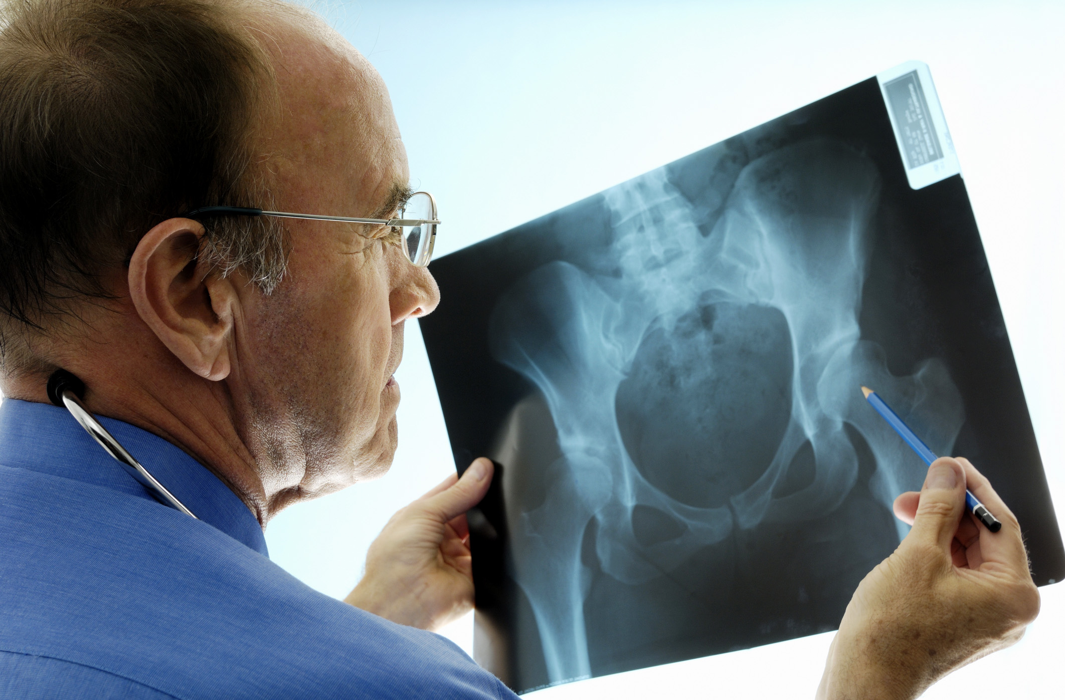 5 Situations You Must See An Orthopedic