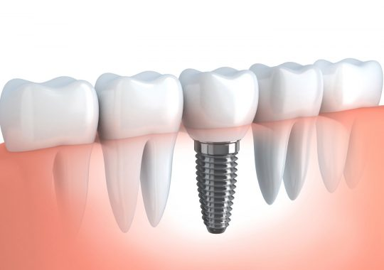Should You Choose Dental Implants Or Bridges?